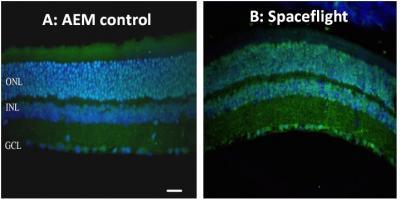 La retina di un topo prima e dopo il volo nello spazio