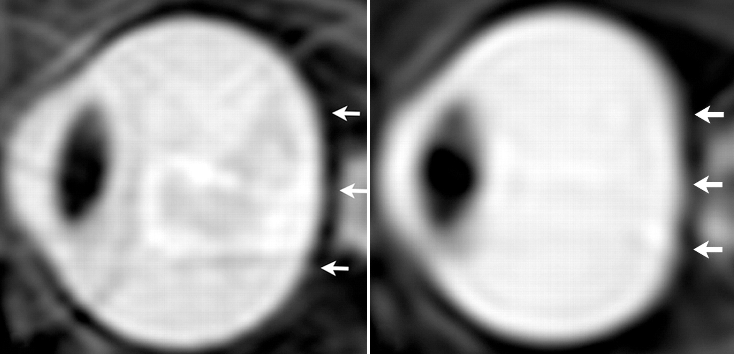 Uno studio sulla vista degli astronauti risalente al 2012. Nell'immagine il prima (sinistra) e il dopo (destra) dell'occhio sinistro di un astronauta dopo una lunga esposizione alla microgravità. Si è notato (come indicano le frecce) una perdita di convessità nel margine posteriore della sclera. Crediti: Radiology Society of North America